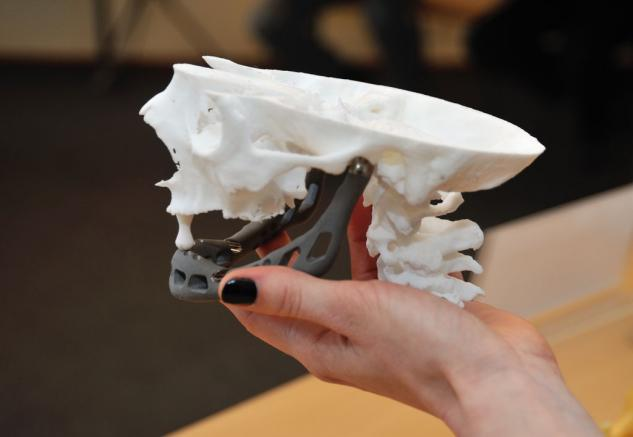 3D Printed Jaw Implant