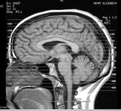 Brain 3D Scan