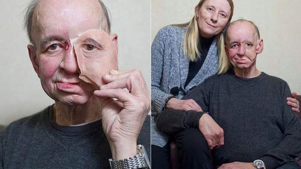3D Printing Medical Face