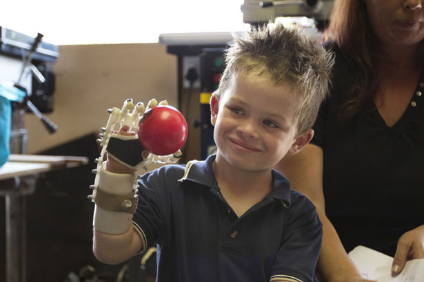 3D Printing Medical Robohand