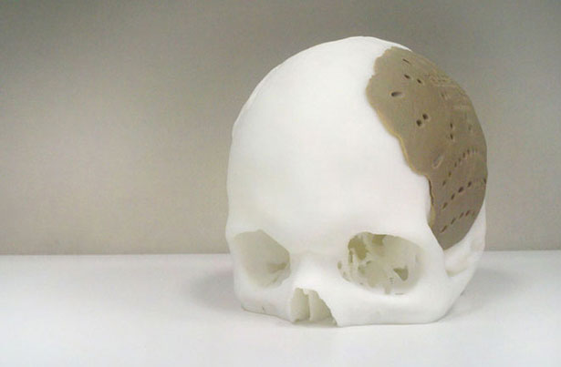 3D Printing Medical Skull Replacement
