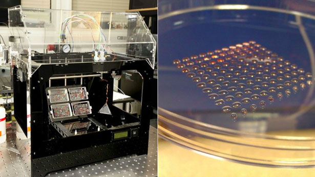 3D Printing Medical Stem Cells